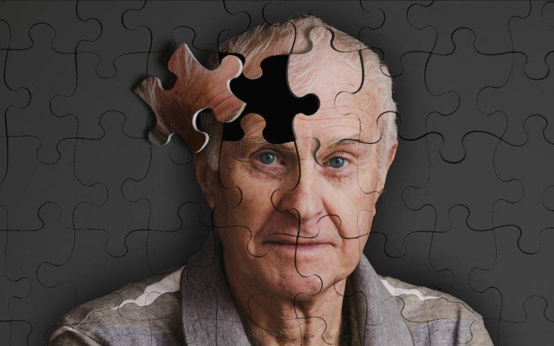 ¿Qué es el #Alzheimer ?